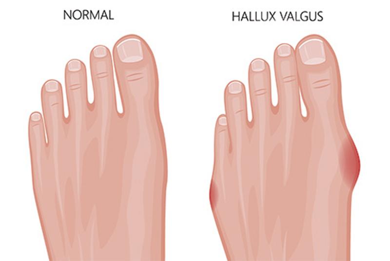 hallux_Valgus