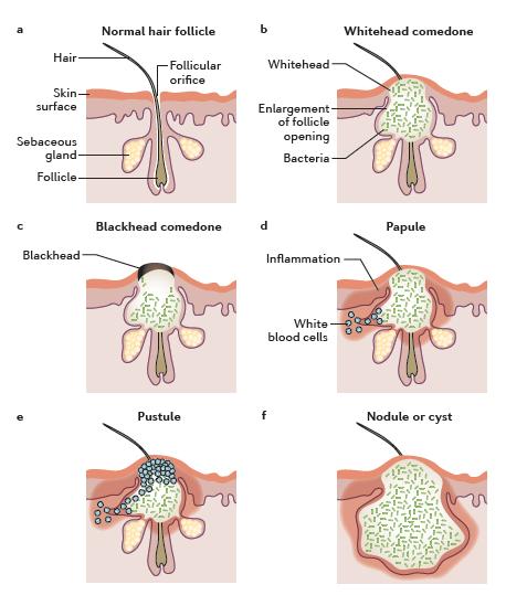 formacion-acne